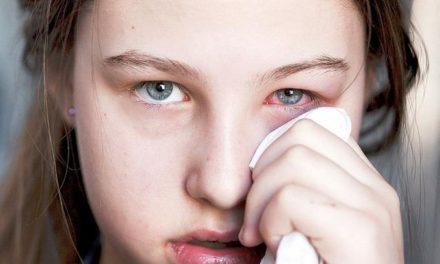Con más de 8 mil casos registrados, Salud Pública declara la conjuntivitis como una epidemia